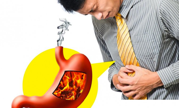 advice for acid reflux impasse